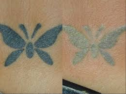 butterfly tattoo showing frosting post laser treatment