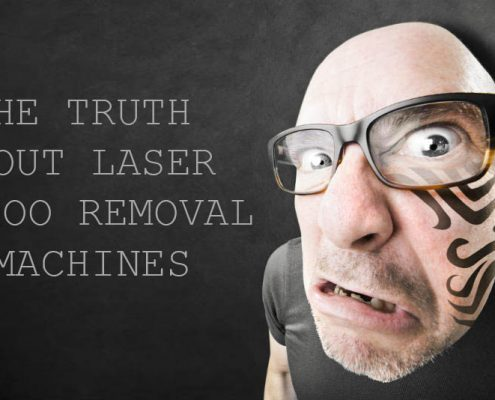 truth about laser tattoo removal machines