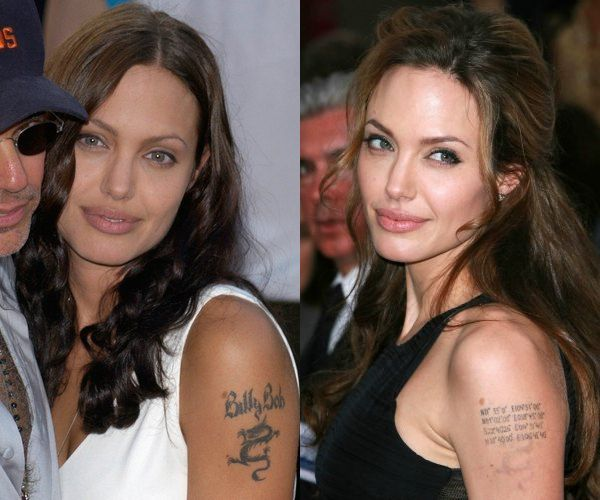 angelina jolie's arm showing laser tattoo removal of a tattoo which was of a previous partner on her arm