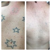 southern cross tattoo removal