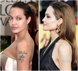 Angelina Jolie's celebrity tattoo removal